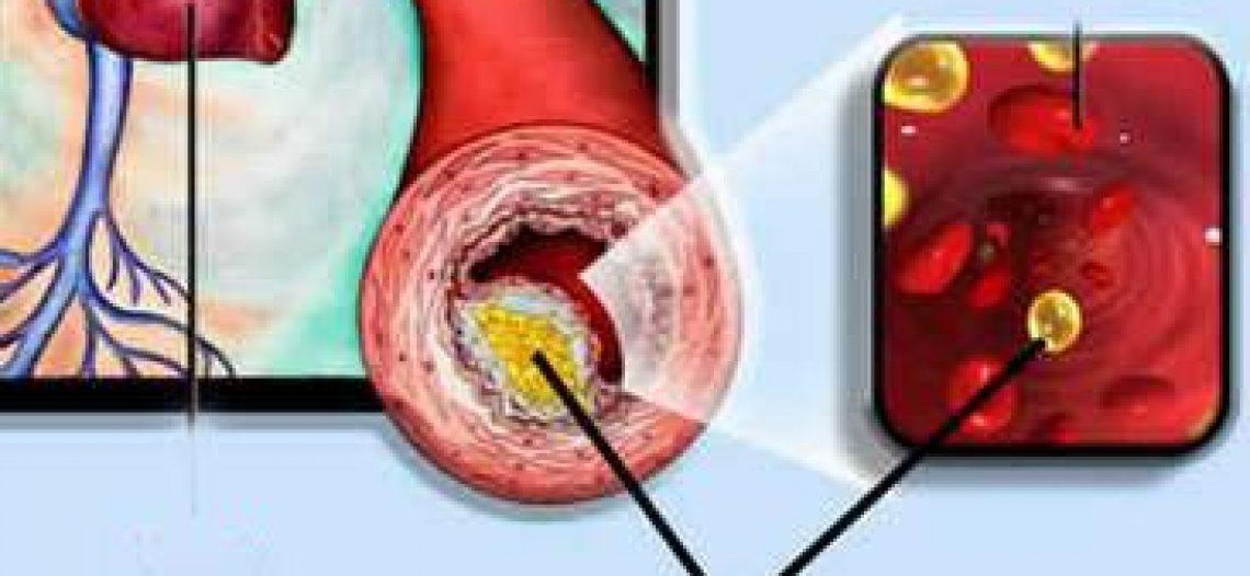 Cholesterol có lợi hay gây hại cho sức khoẻ?