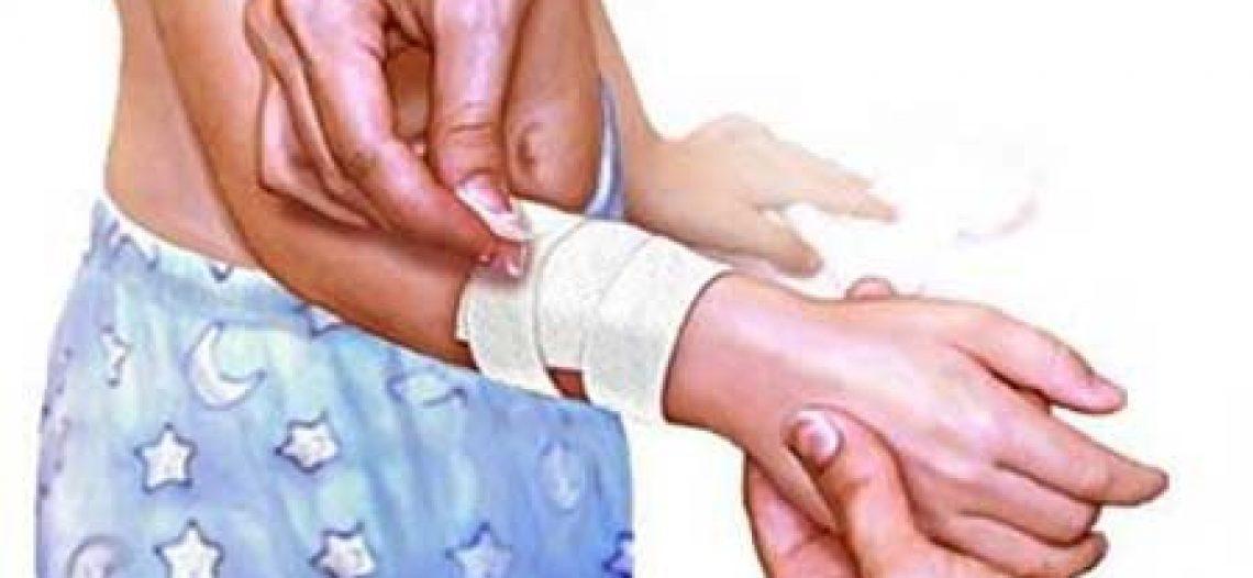 Nguyên tắc xử trí vết thương phần mềm chảy máu